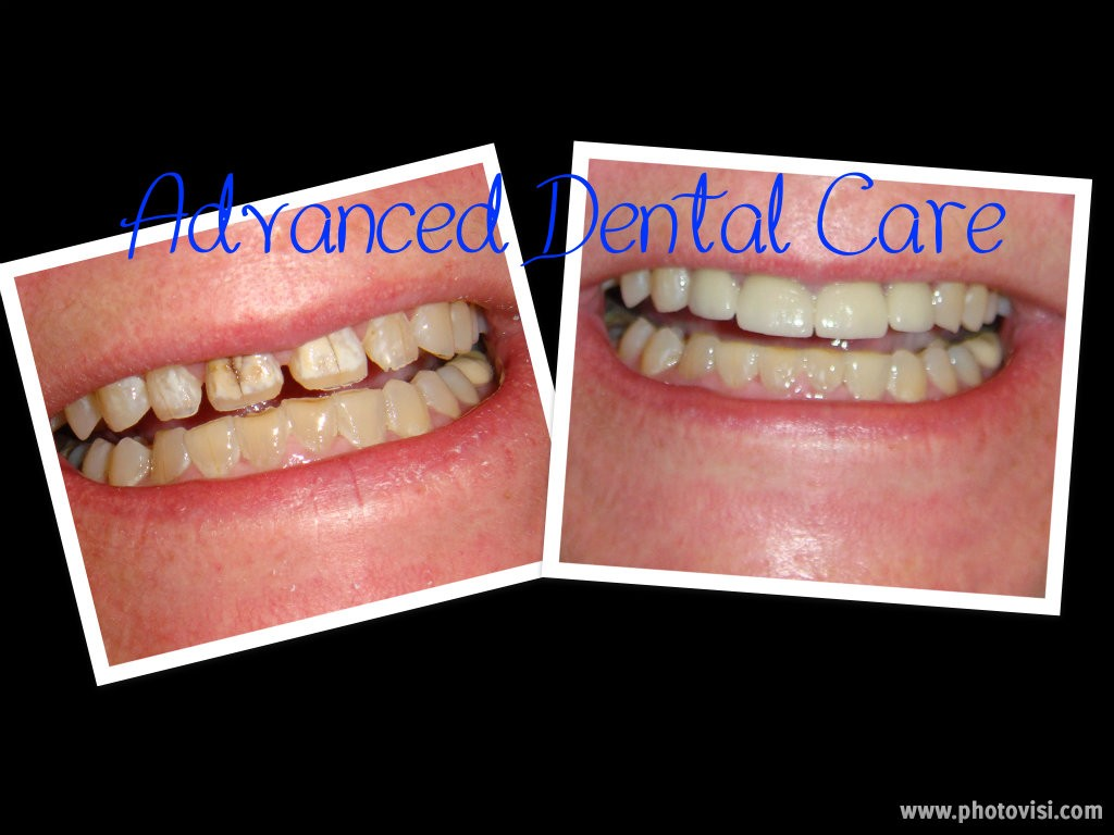 Before & After - Advanced Dental Care Quincy, IL