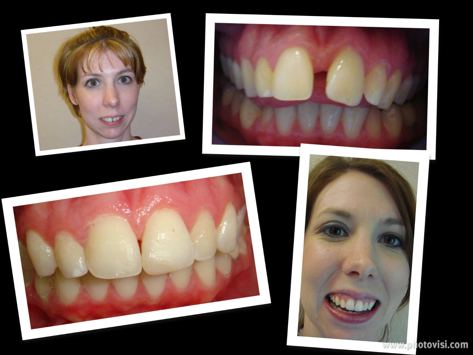 Invisalign Before & After - Advanced Dental Care Quincy, IL