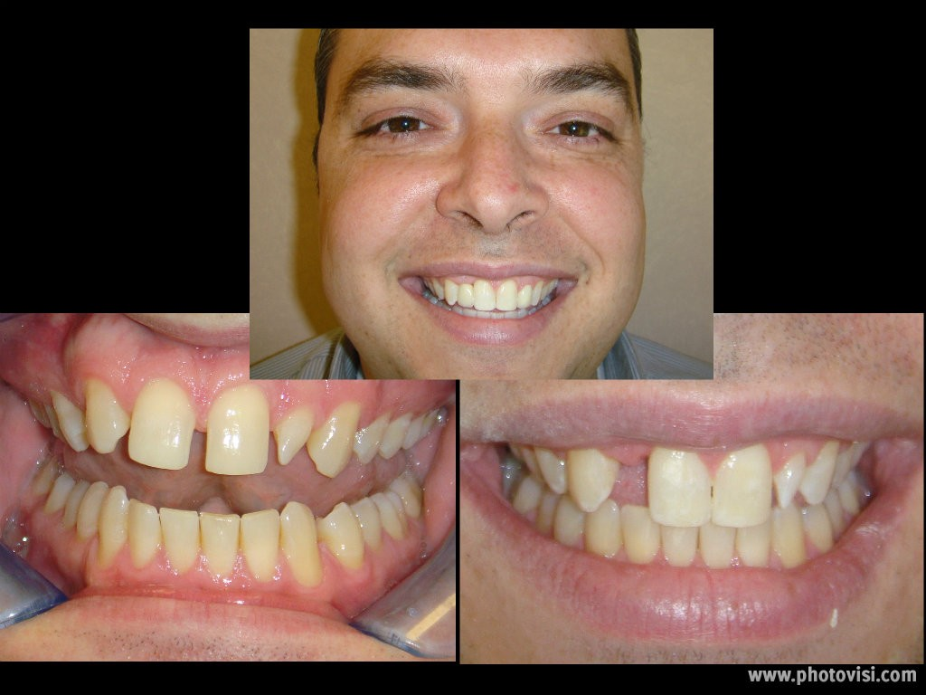 On Martin, we did Invisalign, veneered his smaller lateral, and created space for his missing tooth and placed an implant.