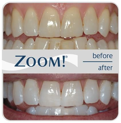Zoom Dental Whitening - Quincy, IL